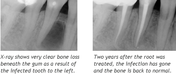 X-ray photos - before and after treatment